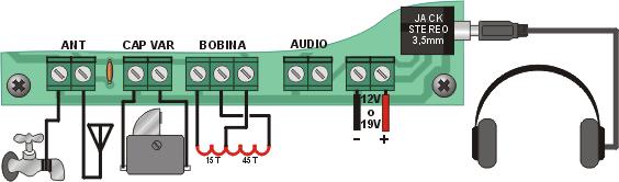 radio-valvular-vista-conexiones.png